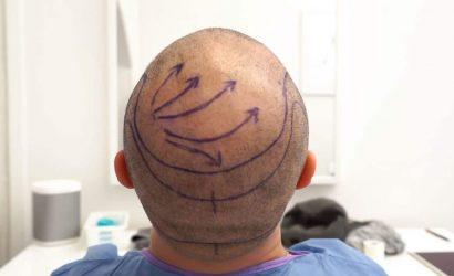 Saç-Ekimini-Özel-Sağlık-Sigortası-Karşılar mı